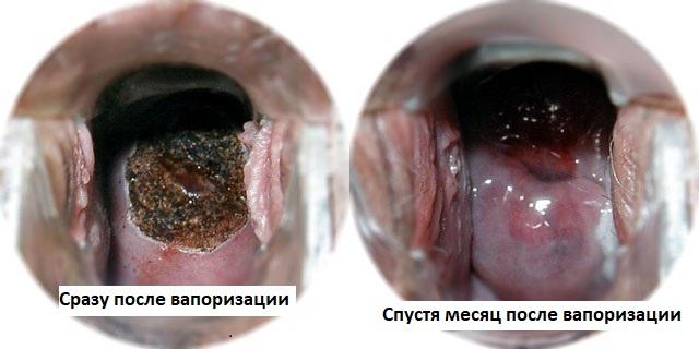 Остеопороз лечение санаторий